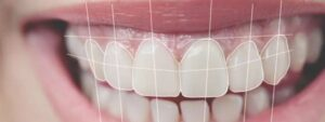 Read more about the article Tooth Wear